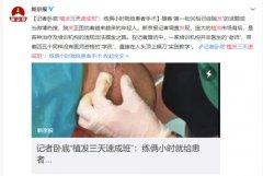 倍生唐峥勇:如何在广州选择头发种植机构