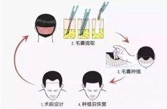 广州最好的植发技术有哪些特征