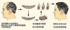 广州植发手术采用的是什么原理